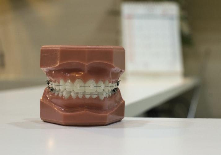 Восстановление биомеханики опорно-двигательного аппарата в процессе комплексной стоматологической коррекции
