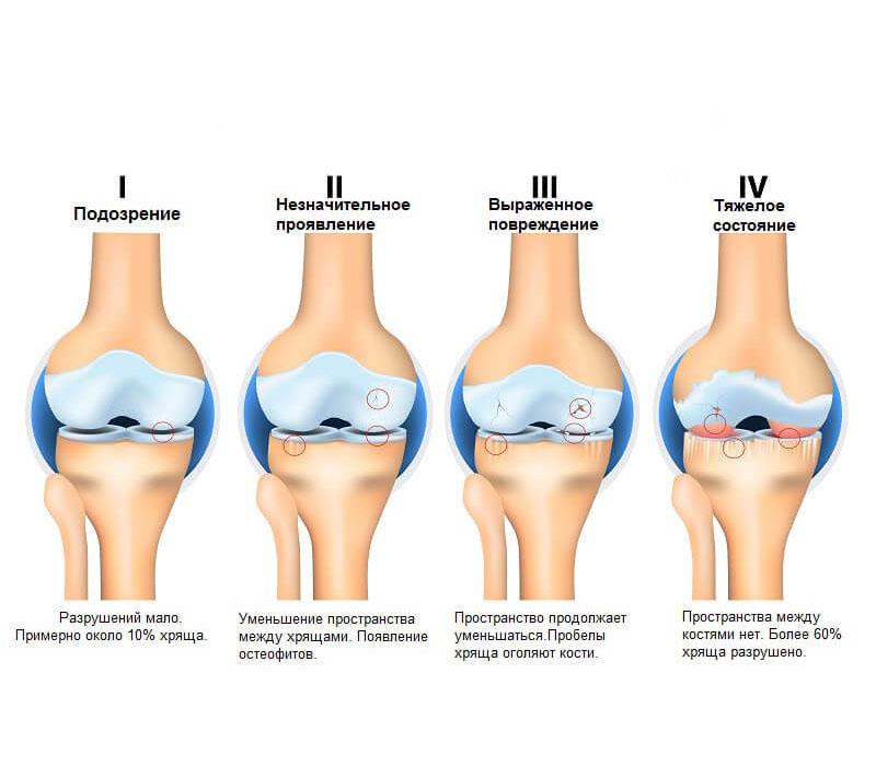 остеоартроз суставов